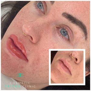 Semi-Permanent Full Lip Tattoo