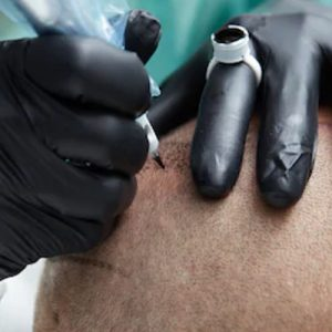 Scalp Tattoo